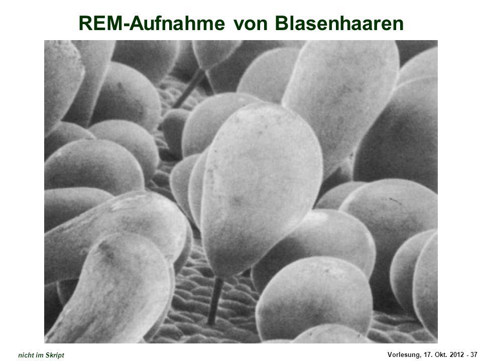 Vorlesung, 17. Okt. 2012 - 37 REM-Aufnahme von Blasenhaaren Atriplex: Blasenhaare nicht im Skript