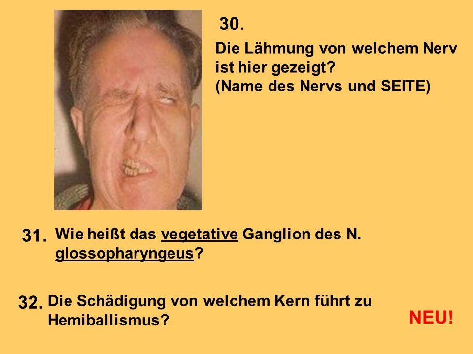 Die Lähmung von welchem Nerv ist hier gezeigt? (Name des Nervs und SEITE) Wie heißt das vegetative Ganglion des N. glossopharyngeus? Die Schädigung vo