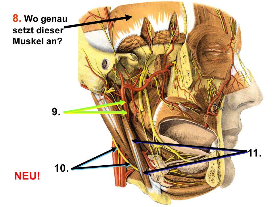 Die folgenden Sinnesqualitäten werden durch den Tractus spinothalamicus weitergeleitet, AUSGENOMMEN VON (mehrere Möglichkeiten) A.Vibration B.Grober Druck C.Temperatur D.Propriozeption E.Schmerz Was sind die Rezeptoren von Muskeleigenreflex.