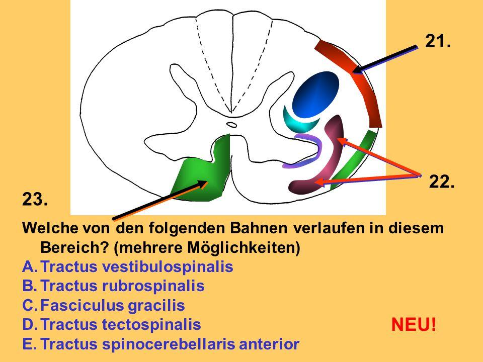 Welche von den folgenden Bahnen verlaufen in diesem Bereich? (mehrere Möglichkeiten) A.Tractus vestibulospinalis B.Tractus rubrospinalis C.Fasciculus