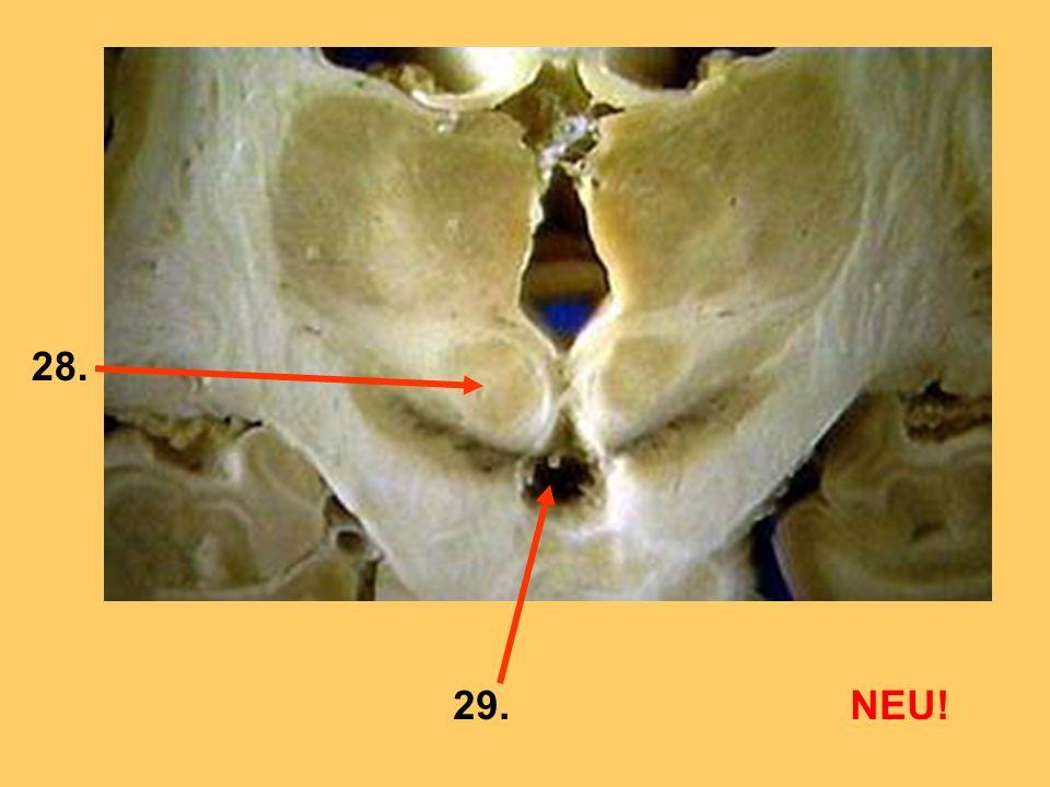 Die Lähmung von welchem Nerv ist hier gezeigt.