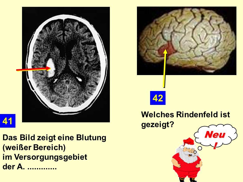 Das Bild zeigt eine Blutung (weißer Bereich) im Versorgungsgebiet der A..............