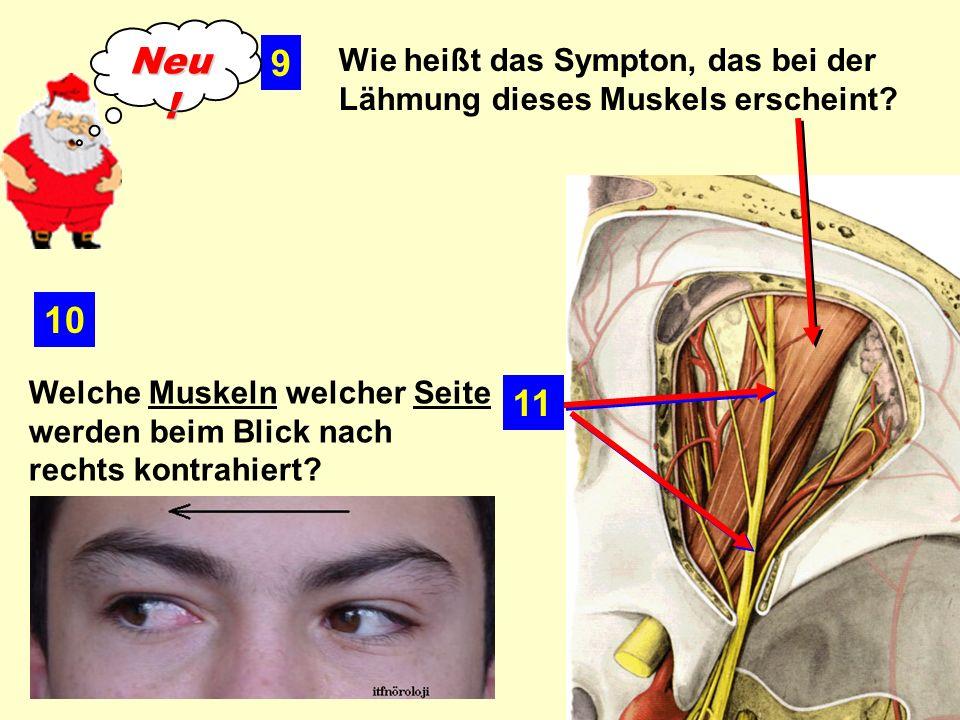 Welche Muskeln welcher Seite werden beim Blick nach rechts kontrahiert.