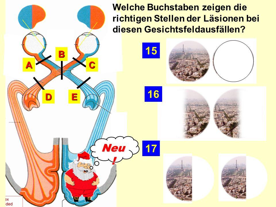 Welche Buchstaben zeigen die richtigen Stellen der Läsionen bei diesen Gesichtsfeldausfällen?ED C B A 17 16 15 Neu !
