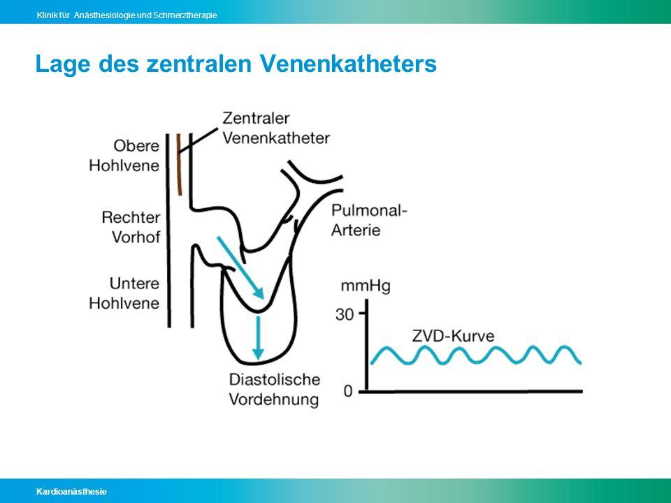 Kardioanästhesie Klinik für Anästhesiologie und Schmerztherapie Lage des zentralen Venenkatheters