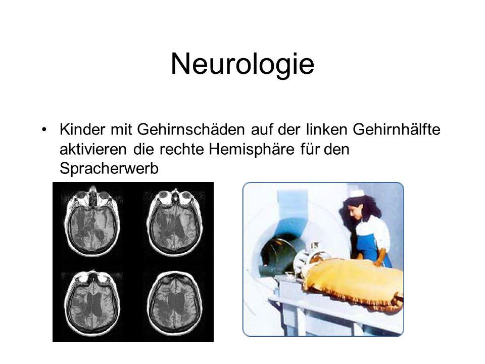 Neurologie Kinder mit Gehirnschäden auf der linken Gehirnhälfte aktivieren die rechte Hemisphäre für den Spracherwerb