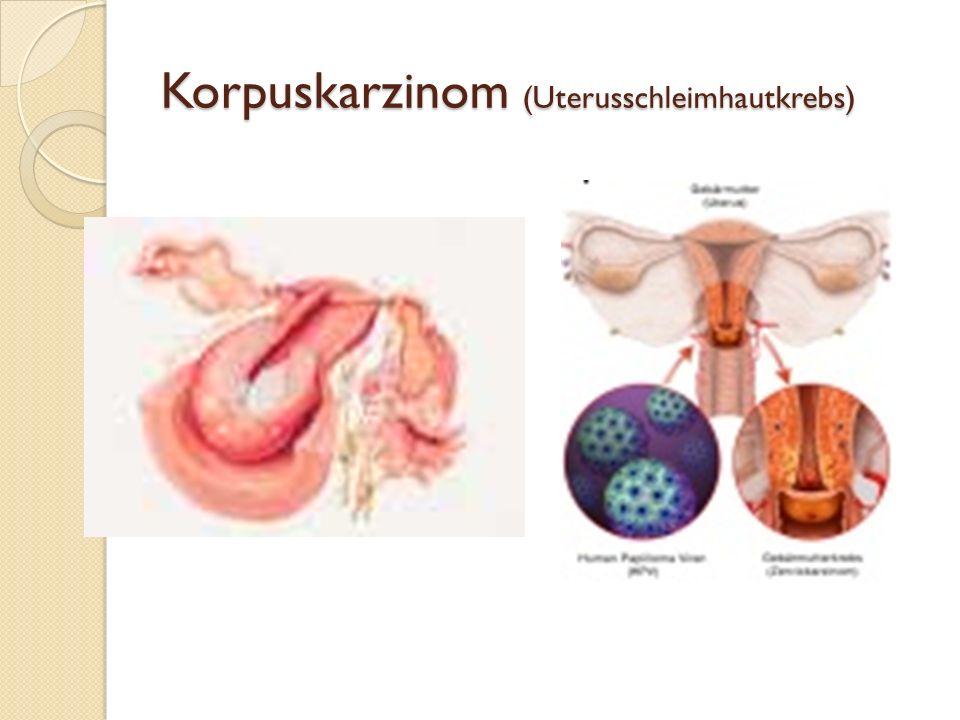 Therapie Regelmäßige Untersuchungen zur Wachstumskontrolle Bei Beschwerden: Hormontherapie zur Wachstumshemmung Operation (Hysterektomie oder nur einz