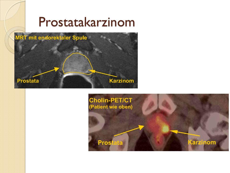 Diagnostik Rektale Untersuchung: verhärtete knotige Prostataanteile Prostata Stanzbiopsie Laborchemisch Tumormarker PSA (prostataspezifisches Antigen)