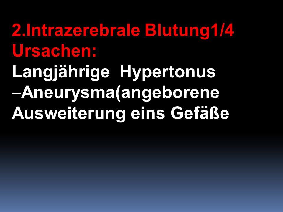 2.Intrazerebrale Blutung1/4 Ursachen: Langjährige Hypertonus Aneurysma(angeborene Ausweiterung eins Gefäße