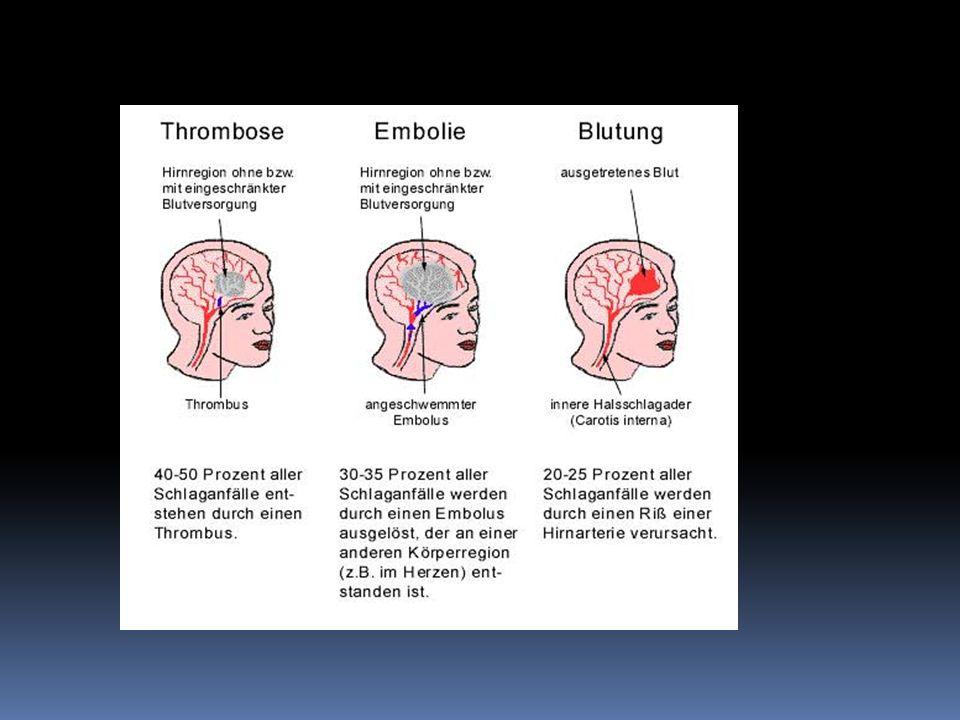 Einsatz von Herzmedikamenten bei einer Trombo Embolie wird ein Tromboauflösende Applikation von Medikamenten, die die Blutflüssigkeiteigenschaten verbessern (Medikament eingesetzt hoch dosierte z.B.