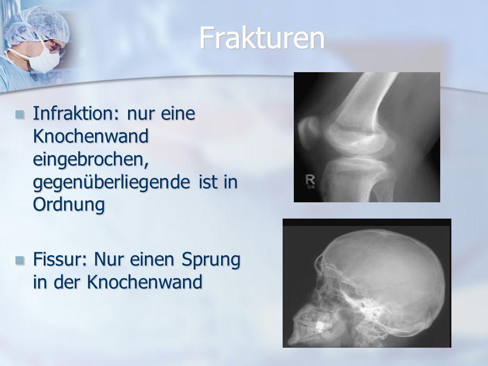 Was ist Osteoporose? Das ist eine Krankheit, bei der die Knochen das wichtige Mineral Kalzium verlieren und in der Folge porös und brüchig werden. Es