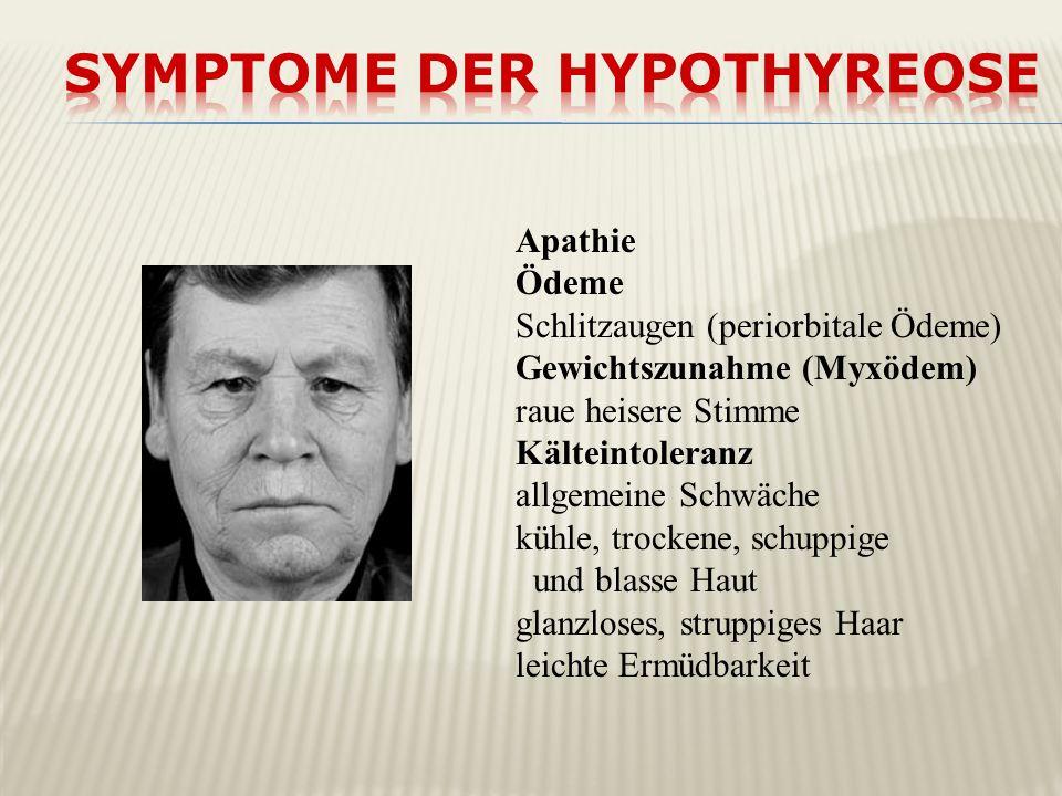 Apathie Ödeme Schlitzaugen (periorbitale Ödeme) Gewichtszunahme (Myxödem) raue heisere Stimme Kälteintoleranz allgemeine Schwäche kühle, trockene, sch