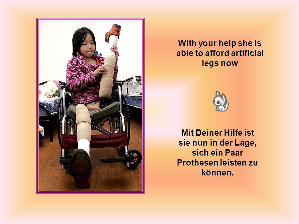 With your help she is able to afford artificial legs now Mit Deiner Hilfe ist sie nun in der Lage, sich ein Paar Prothesen leisten zu können.