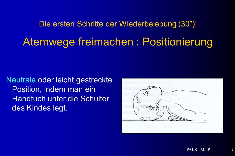 PALS - MUP 1 Die ersten Schritte der Wiederbelebung (30): Atemwege freimachen : Positionierung Neutrale oder leicht gestreckte Position, indem man ein Handtuch unter die Schulter des Kindes legt.