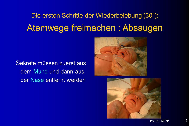 PALS - MUP 1 S ekrete müssen zuerst aus dem Mund und dann aus der Nase entfernt werden Die ersten Schritte der Wiederbelebung (30): Atemwege freimachen : Absaugen