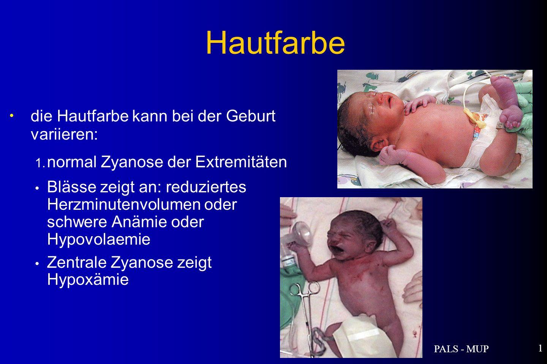 PALS - MUP 1 die Hautfarbe kann bei der Geburt variieren: 1.