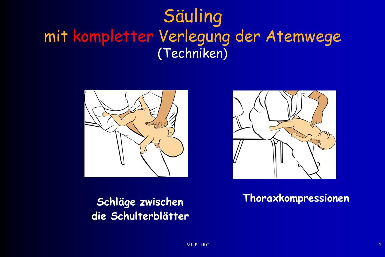 MUP - IRC1 Säuling mit kompletter Verlegung der Atemwege (Techniken) Schläge zwischen die Schulterblätter Thoraxkompressionen