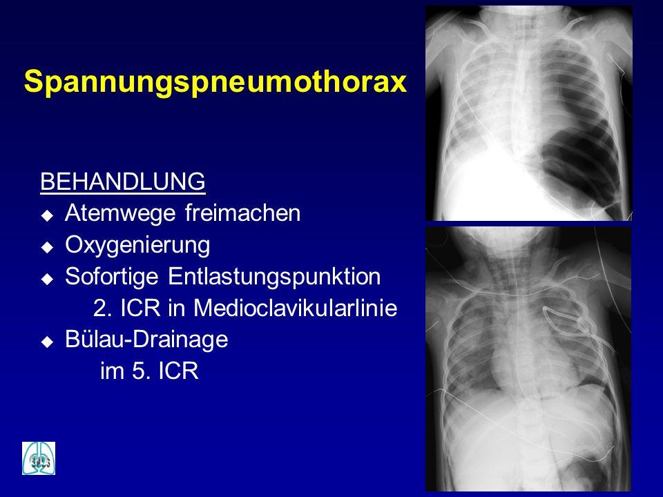 Spannungspneumothorax BEHANDLUNG u Atemwege freimachen u Oxygenierung u Sofortige Entlastungspunktion 2. ICR in Medioclavikularlinie u Bülau-Drainage
