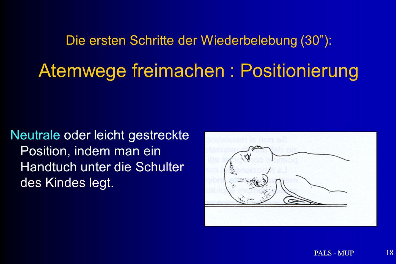 PALS - MUP 18 Die ersten Schritte der Wiederbelebung (30): Atemwege freimachen : Positionierung Neutrale oder leicht gestreckte Position, indem man ein Handtuch unter die Schulter des Kindes legt.