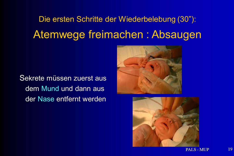 PALS - MUP 19 S ekrete müssen zuerst aus dem Mund und dann aus der Nase entfernt werden Die ersten Schritte der Wiederbelebung (30): Atemwege freimachen : Absaugen