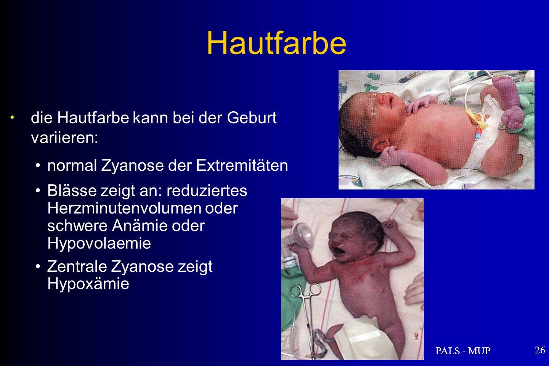 PALS - MUP 26 die Hautfarbe kann bei der Geburt variieren: normal Zyanose der Extremitäten Blässe zeigt an: reduziertes Herzminutenvolumen oder schwere Anämie oder Hypovolaemie Zentrale Zyanose zeigt Hypoxämie Hautfarbe