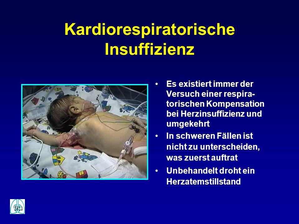 Kardiorespiratorische Insuffizienz Es existiert immer der Versuch einer respira- torischen Kompensation bei Herzinsuffizienz und umgekehrt In schweren