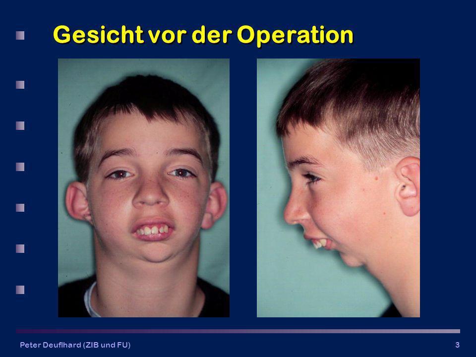 Peter Deuflhard (ZIB und FU)3 Gesicht vor der Operation