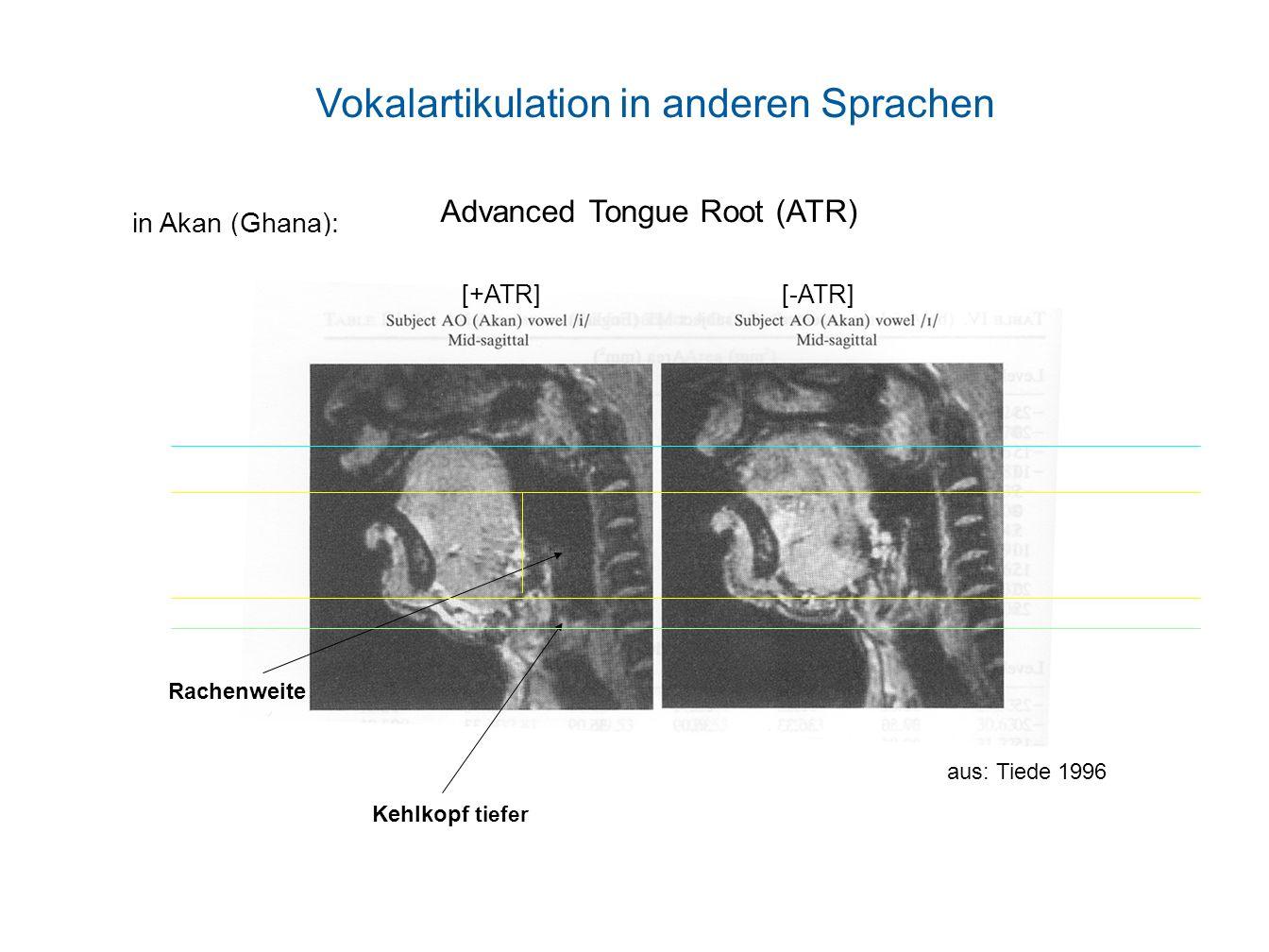 Advanced Tongue Root (ATR) in Akan (Ghana): Rachenweite Kehlkopf tiefer [+ATR] [-ATR] aus: Tiede 1996 Vokalartikulation in anderen Sprachen