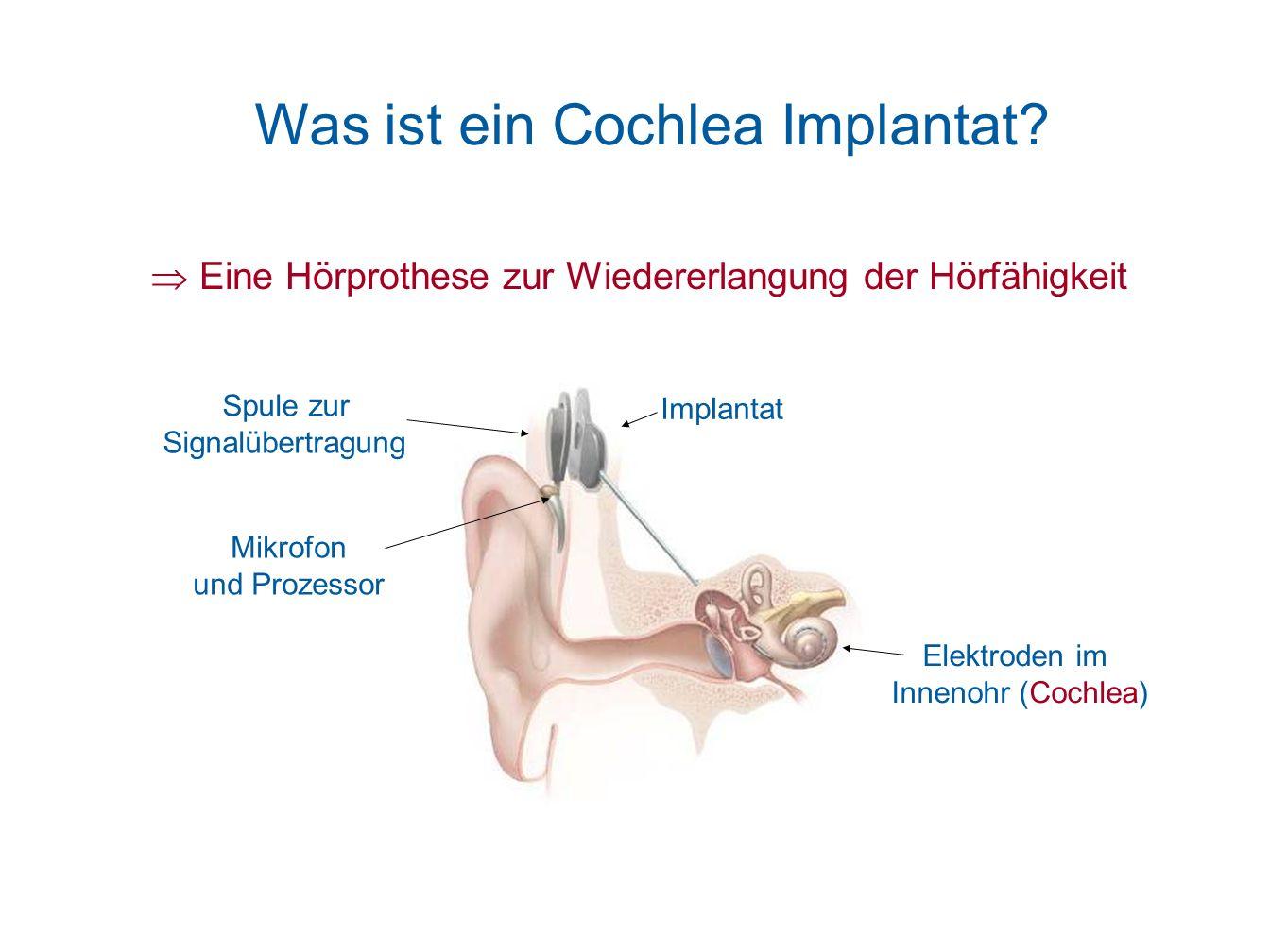 Was ist ein Cochlea Implantat? Eine Hörprothese zur Wiedererlangung der Hörfähigkeit Elektroden im Innenohr (Cochlea) Mikrofon und Prozessor Spule zur