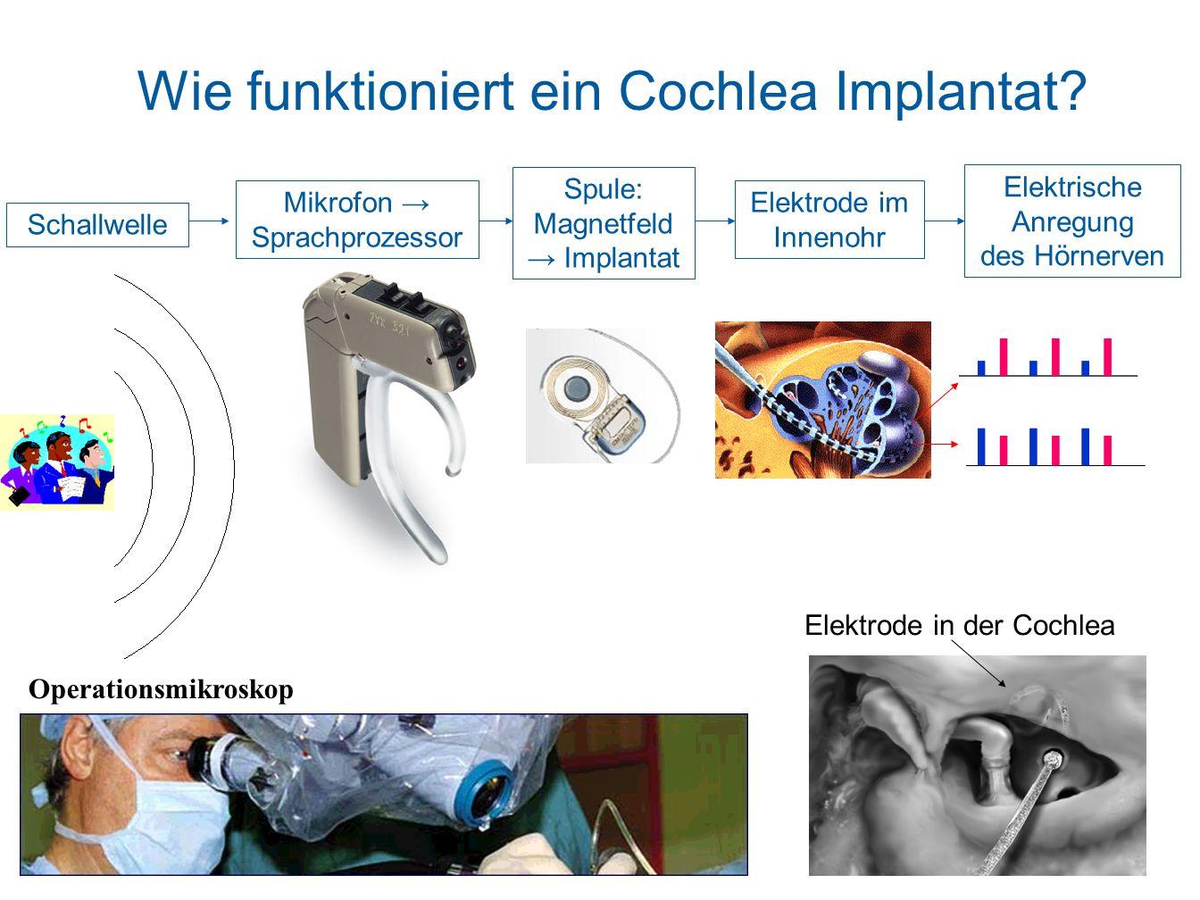 Wie funktioniert ein Cochlea Implantat? Operationsmikroskop Elektrode in der Cochlea Schallwelle Mikrofon Sprachprozessor Spule: Magnetfeld Implantat