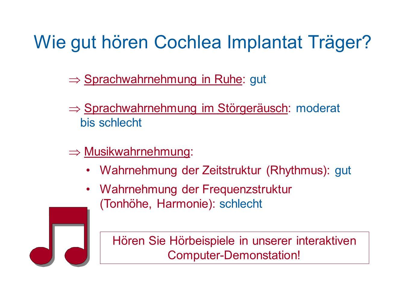 Wie gut hören Cochlea Implantat Träger? Sprachwahrnehmung in Ruhe: gut Sprachwahrnehmung im Störgeräusch: moderat bis schlecht Musikwahrnehmung: Wahrn