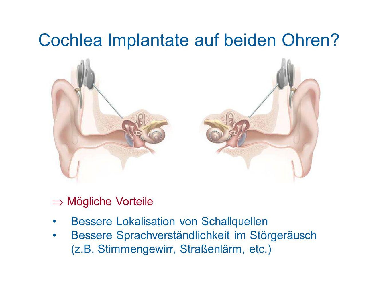 Cochlea Implantate auf beiden Ohren? Mögliche Vorteile Bessere Lokalisation von Schallquellen Bessere Sprachverständlichkeit im Störgeräusch (z.B. Sti
