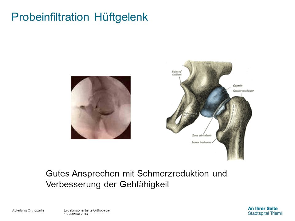 Abteilung Orthopädie Probeinfiltration Hüftgelenk Ergebnisorientierte Orthopädie 16. Januar 2014 Gutes Ansprechen mit Schmerzreduktion und Verbesserun