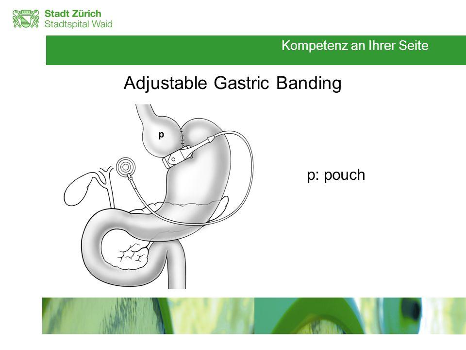 Kompetenz an Ihrer Seite Adjustable Gastric Banding p: pouch