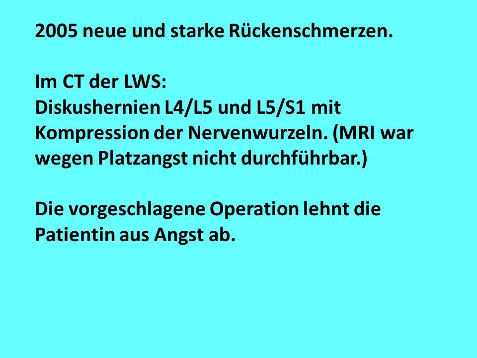 2005 neue und starke Rückenschmerzen. Im CT der LWS: Diskushernien L4/L5 und L5/S1 mit Kompression der Nervenwurzeln. (MRI war wegen Platzangst nicht
