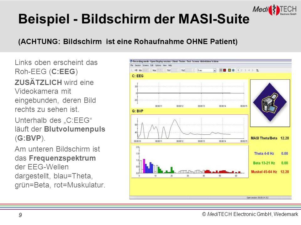 © MediTECH Electronic GmbH, Wedemark Beispiel - Bildschirm der MASI-Suite (ACHTUNG: Bildschirm ist eine Rohaufnahme OHNE Patient) Links oben erscheint
