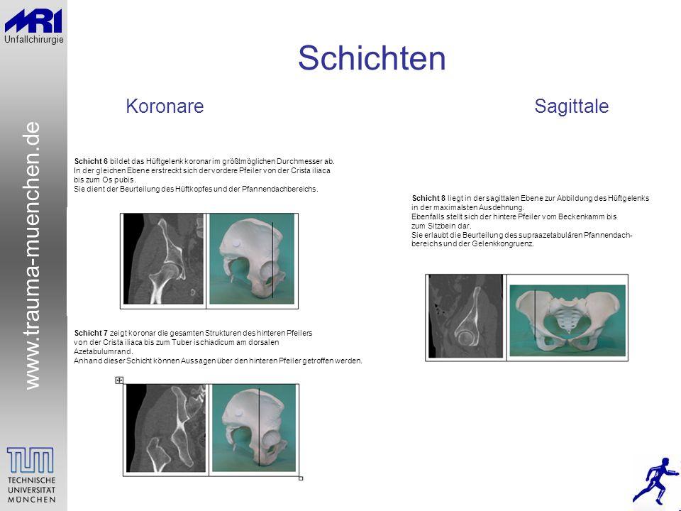 www.trauma-muenchen.de Unfallchirurgie Schichten KoronareSagittale Schicht 6 bildet das Hüftgelenk koronar im größtmöglichen Durchmesser ab. In der gl