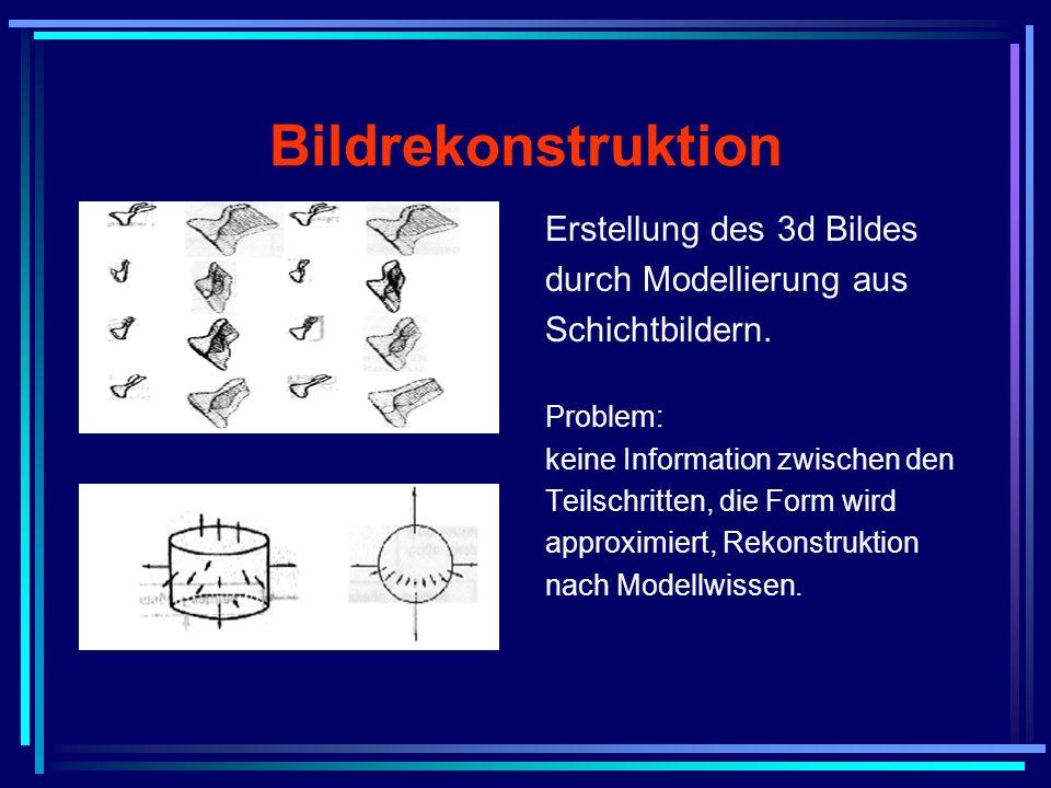 Bildrekonstruktion Erstellung des 3d Bildes durch Modellierung aus Schichtbildern. Problem: keine Information zwischen den Teilschritten, die Form wir