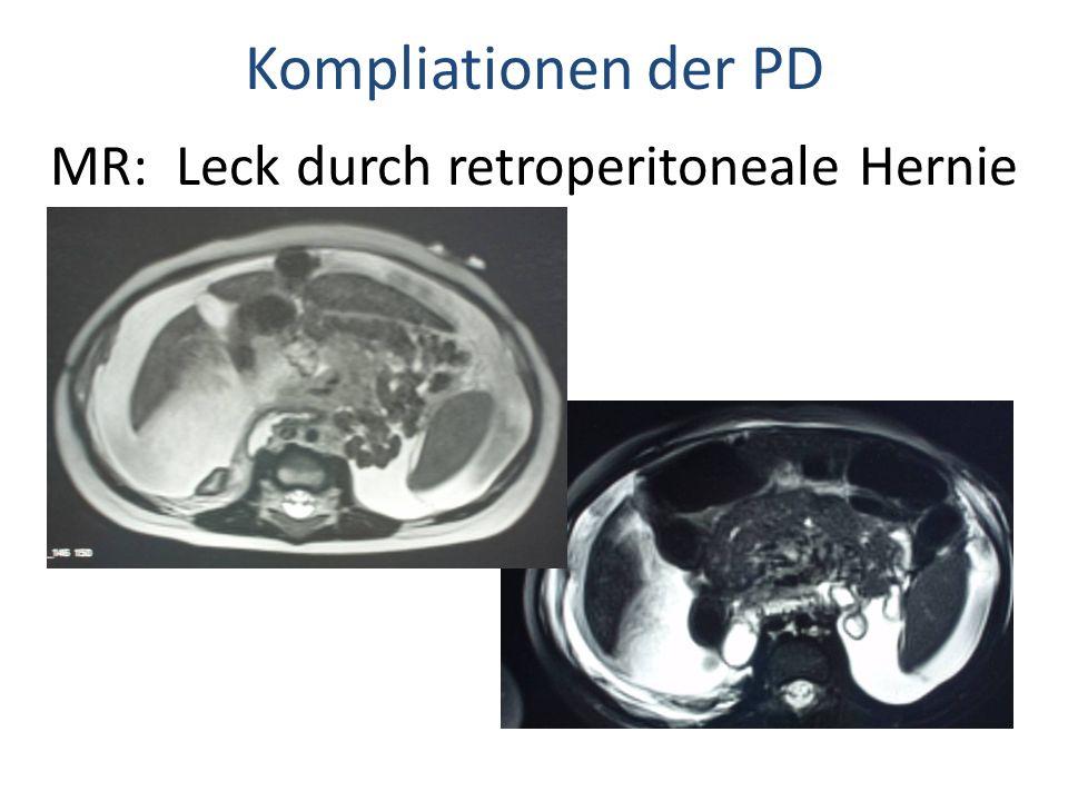 MR: Leck durch retroperitoneale Hernie Kompliationen der PD