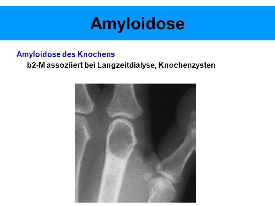 Amyloidose Amyloidose des Knochens b2-M assoziiert bei Langzeitdialyse, Knochenzysten