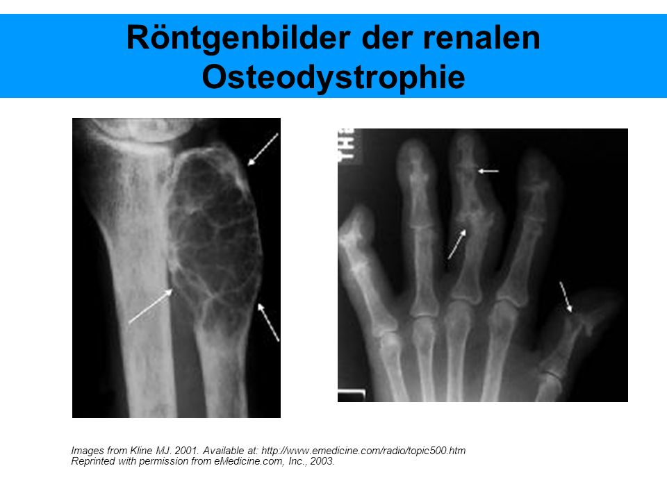 Röntgenbilder der renalen Osteodystrophie Images from Kline MJ. 2001. Available at: http://www.emedicine.com/radio/topic500.htm Reprinted with permiss