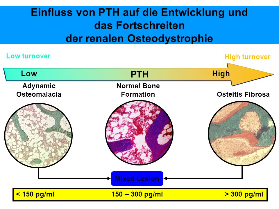 Einfluss von PTH auf die Entwicklung und das Fortschreiten der renalen Osteodystrophie Mixed Lesion Osteitis Fibrosa Normal Bone Formation High Low turnover High turnover Adynamic Osteomalacia Low PTH 300 pg/ml