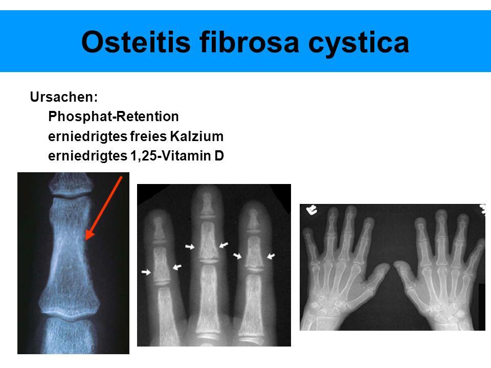 Osteitis fibrosa cystica Ursachen: Phosphat-Retention erniedrigtes freies Kalzium erniedrigtes 1,25-Vitamin D