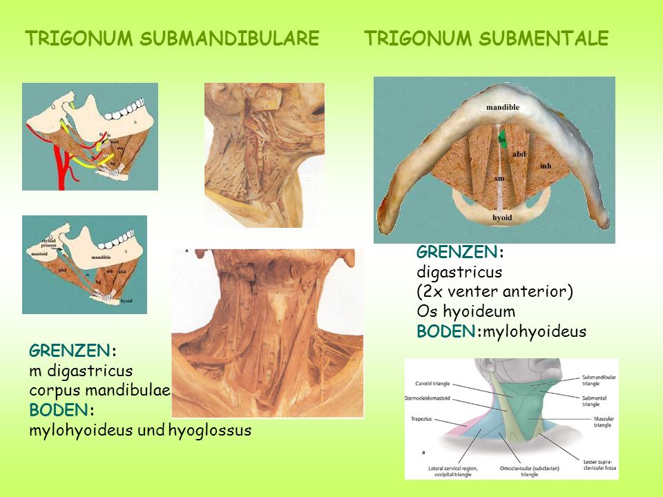 TRIGONUM SUBMANDIBULARE GRENZEN: m digastricus corpus mandibulae BODEN: mylohyoideus und hyoglossus GRENZEN: digastricus (2x venter anterior) Os hyoideum BODEN:mylohyoideus TRIGONUM SUBMENTALE