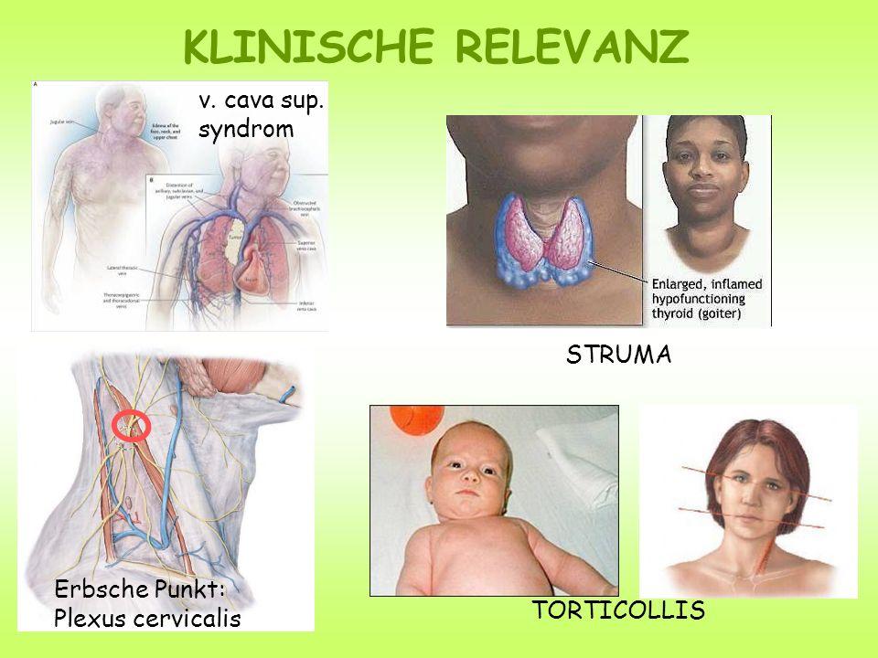 Erbsche Punkt: Plexus cervicalis KLINISCHE RELEVANZ TORTICOLLIS STRUMA v. cava sup. syndrom