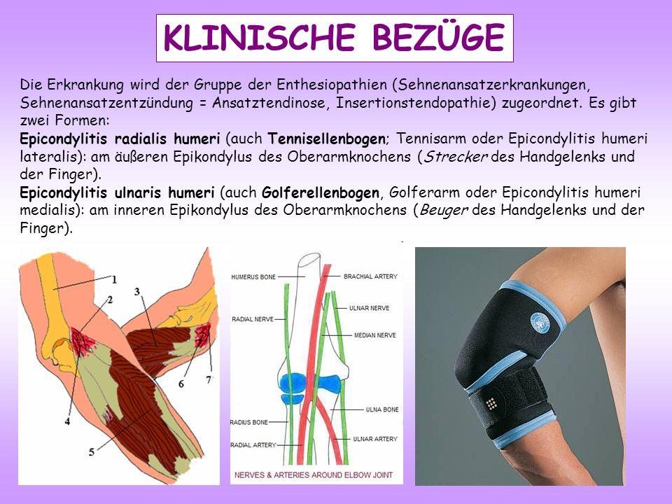 KLINISCHE BEZÜGE Die Erkrankung wird der Gruppe der Enthesiopathien (Sehnenansatzerkrankungen, Sehnenansatzentzündung = Ansatztendinose, Insertionstendopathie) zugeordnet.