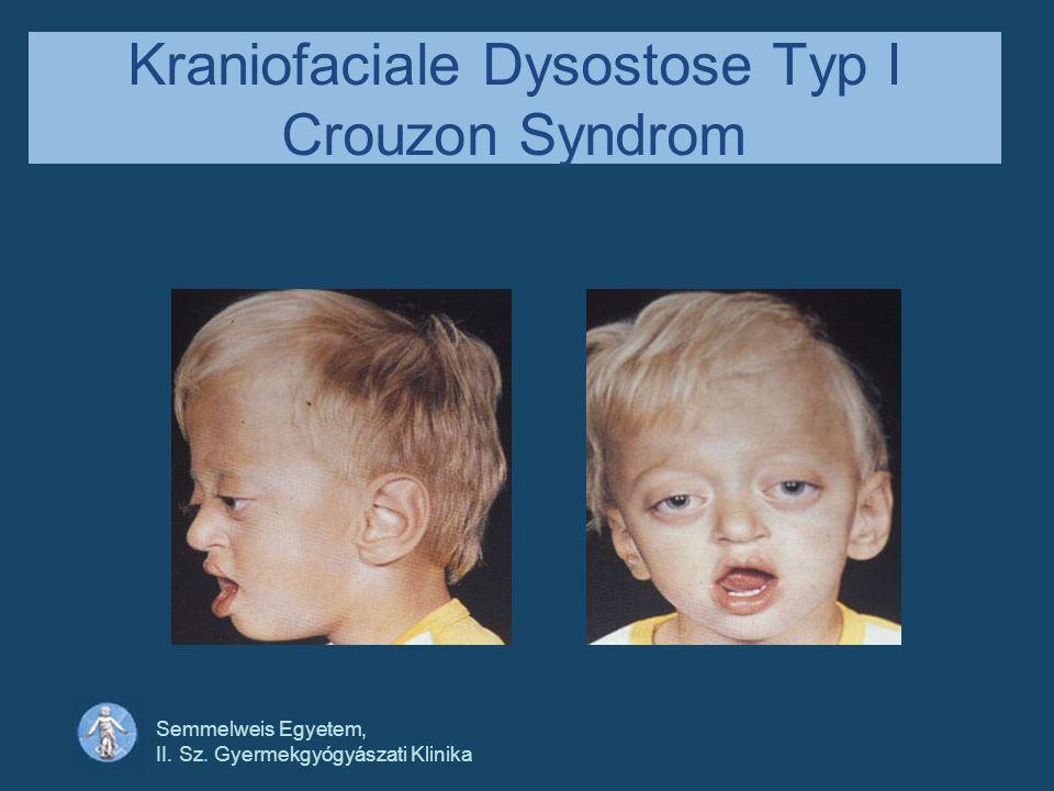 Semmelweis Egyetem, II. Sz. Gyermekgyógyászati Klinika Kraniofaciale Dysostose Typ I Crouzon Syndrom