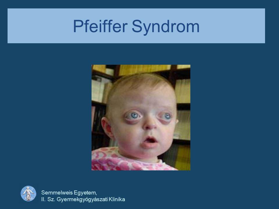 Semmelweis Egyetem, II. Sz. Gyermekgyógyászati Klinika Pfeiffer Syndrom