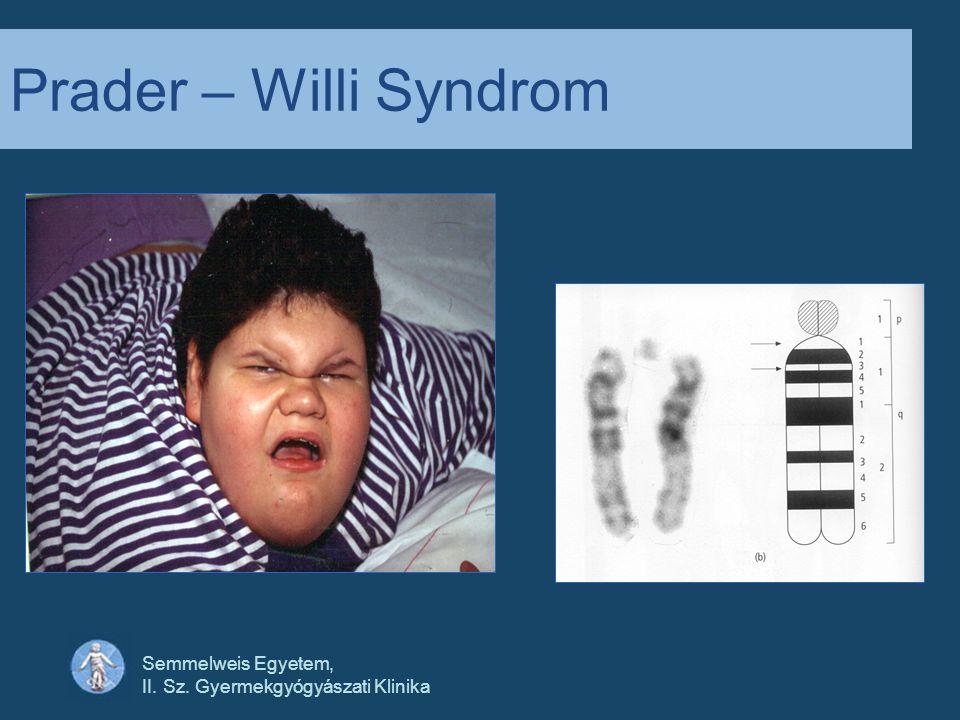 Semmelweis Egyetem, II. Sz. Gyermekgyógyászati Klinika Prader – Willi Syndrom