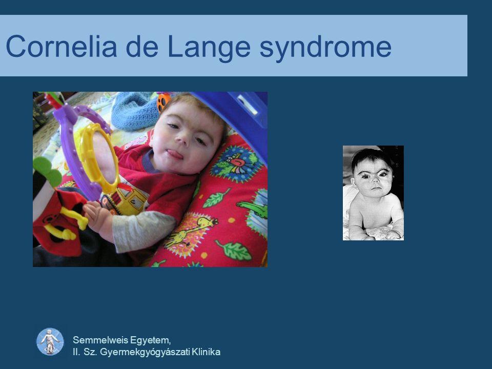 Semmelweis Egyetem, II. Sz. Gyermekgyógyászati Klinika Cornelia de Lange syndrome